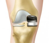 Biomet Oxford Knee - Front View