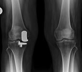 Biomet Oxford Knee - Front Xray